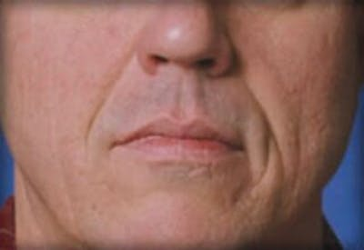 Injectables Gallery - Patient 25274071 - Image 1