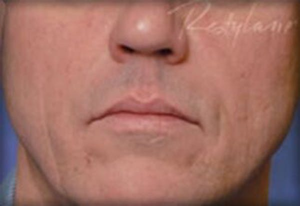 Injectables Gallery - Patient 25274071 - Image 2