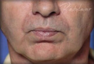 Injectables Gallery - Patient 25274084 - Image 2