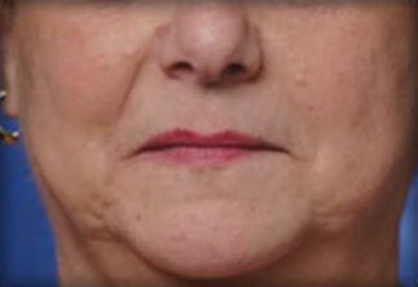 Injectables Gallery - Patient 25274087 - Image 1
