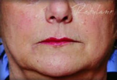 Injectables Gallery - Patient 25274087 - Image 2
