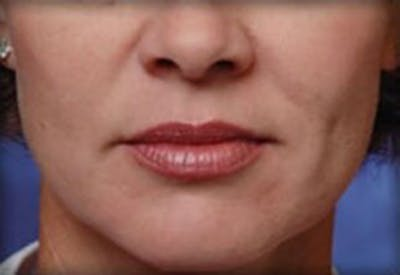 Injectables Gallery - Patient 25274090 - Image 1