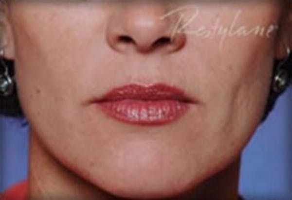 Injectables Gallery - Patient 25274090 - Image 2