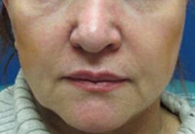 Injectables Gallery - Patient 25274098 - Image 1