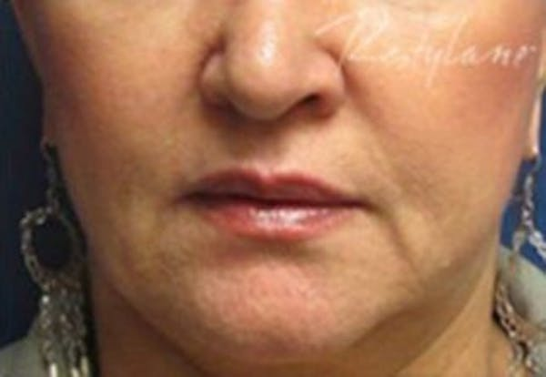 Injectables Gallery - Patient 25274098 - Image 2