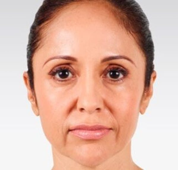 Injectables Gallery - Patient 25274101 - Image 1