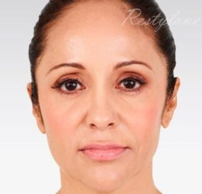 Injectables Gallery - Patient 25274101 - Image 2