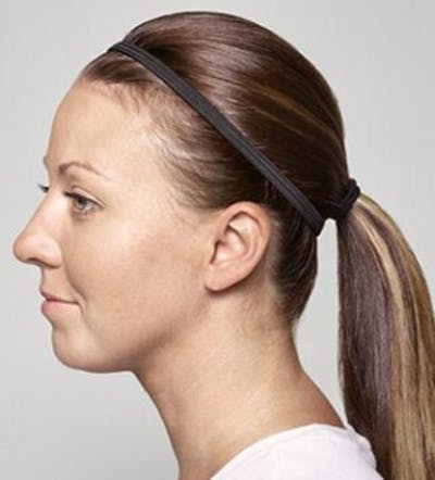 Injectables Gallery - Patient 25274114 - Image 1