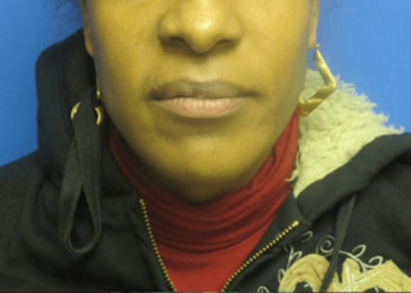 Lip Reduction Gallery - Patient 25274175 - Image 1