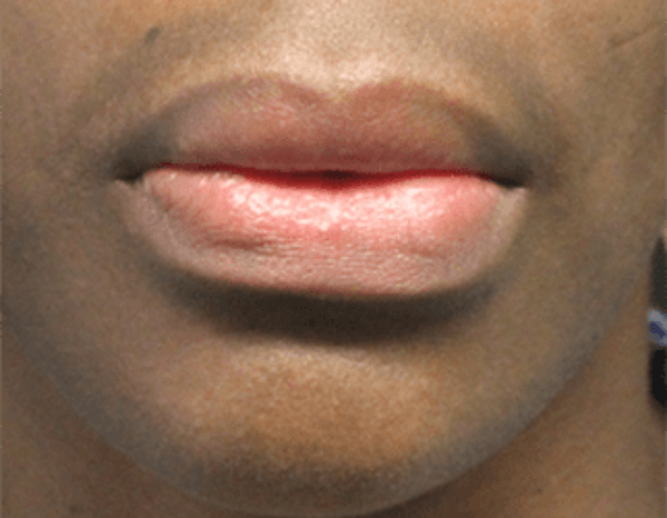 Lip Reduction Gallery - Patient 25274177 - Image 2