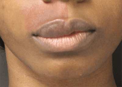 Lip Reduction Gallery - Patient 25274179 - Image 1
