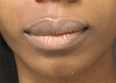 Lip Reduction Gallery - Patient 25274179 - Image 2