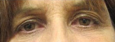 Blepharoplasty Gallery - Patient 25274630 - Image 1