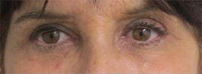 Blepharoplasty Gallery - Patient 25274630 - Image 2