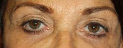 Blepharoplasty Gallery - Patient 25274632 - Image 1