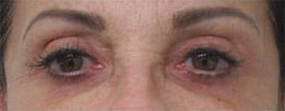Blepharoplasty Gallery - Patient 25274632 - Image 2