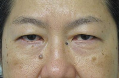 Blepharoplasty Gallery - Patient 25274638 - Image 1