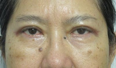 Blepharoplasty Gallery - Patient 25274638 - Image 2