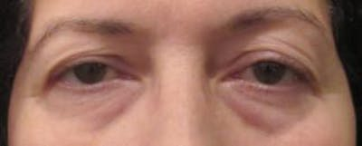 Blepharoplasty Gallery - Patient 25274639 - Image 1