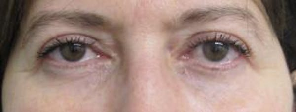 Blepharoplasty Gallery - Patient 25274639 - Image 2