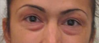 Blepharoplasty Gallery - Patient 25274642 - Image 1