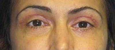 Blepharoplasty Gallery - Patient 25274642 - Image 2