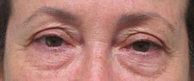 Blepharoplasty Gallery - Patient 25274643 - Image 1