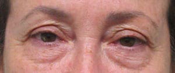Blepharoplasty Gallery - Patient 25274643 - Image 1