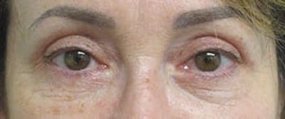 Blepharoplasty Gallery - Patient 25274643 - Image 2