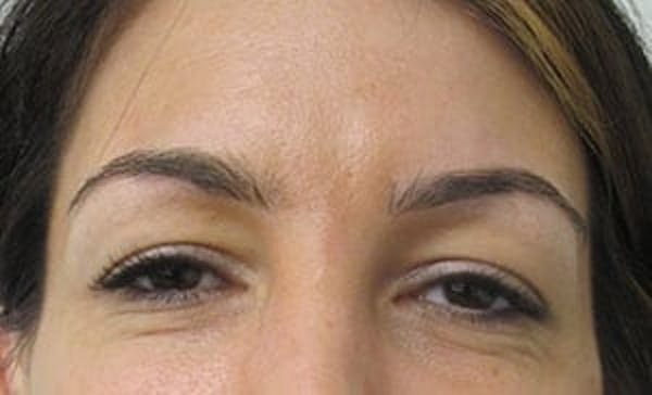 Blepharoplasty Gallery - Patient 25274646 - Image 1