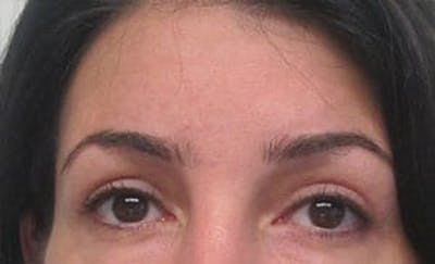 Blepharoplasty Gallery - Patient 25274646 - Image 2