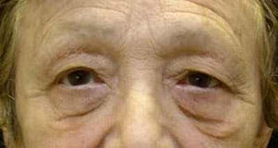Blepharoplasty Gallery - Patient 25274648 - Image 1
