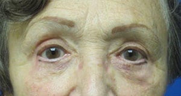Blepharoplasty Gallery - Patient 25274648 - Image 2
