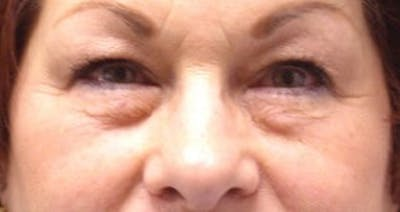 Blepharoplasty Gallery - Patient 25274650 - Image 1