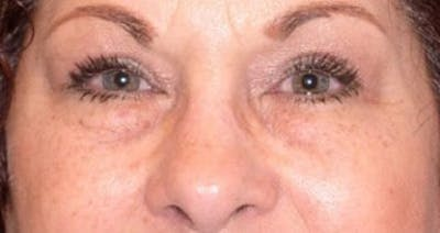 Blepharoplasty Gallery - Patient 25274650 - Image 2