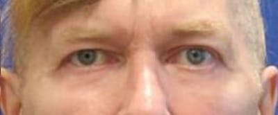 Blepharoplasty Gallery - Patient 25274652 - Image 2