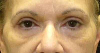 Blepharoplasty Gallery - Patient 25274654 - Image 2