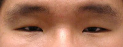 Blepharoplasty Gallery - Patient 25274656 - Image 1