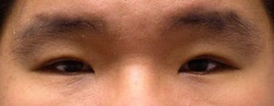 Blepharoplasty Gallery - Patient 25274656 - Image 2