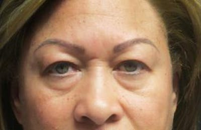 Blepharoplasty Gallery - Patient 25274657 - Image 1