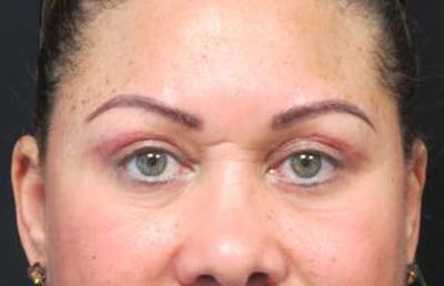 Blepharoplasty Gallery - Patient 25274657 - Image 2