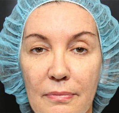Blepharoplasty Gallery - Patient 25274659 - Image 1