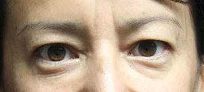 Blepharoplasty Gallery - Patient 25274661 - Image 1