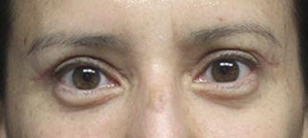 Blepharoplasty Gallery - Patient 25274661 - Image 2