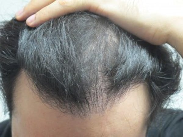 Hair Transplant Gallery - Patient 25274664 - Image 1