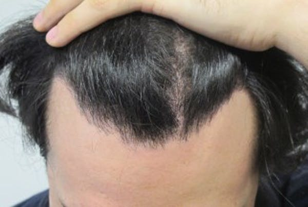 Hair Transplant Gallery - Patient 25274664 - Image 2