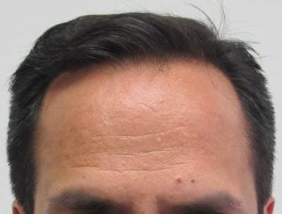 Hair Transplant Gallery - Patient 25274665 - Image 1