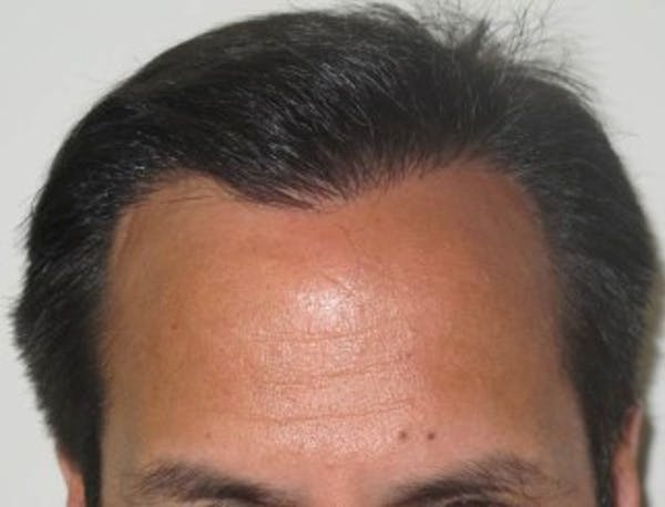 Hair Transplant Gallery - Patient 25274665 - Image 2