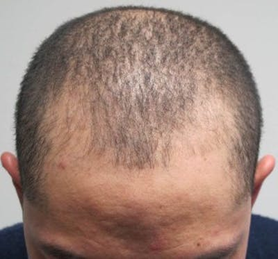 Hair Transplant Gallery - Patient 25274667 - Image 1