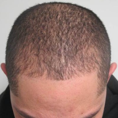 Hair Transplant Gallery - Patient 25274667 - Image 2